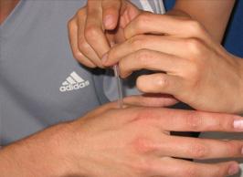 Gunn acupunctuur, spier