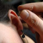 arts voor medische acupunctuur, oor