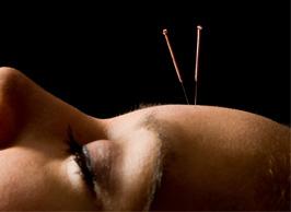 acupunctuur arts schedel acupunctuur