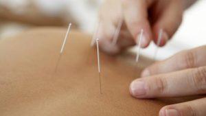 Stres en burnout Acupunctuur